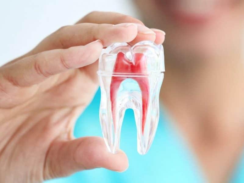 Eryaman Diş Hizmetleri Ve Avantajlı Tercihler