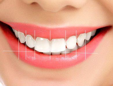 Diş Estetiği Tanılama Süreci
