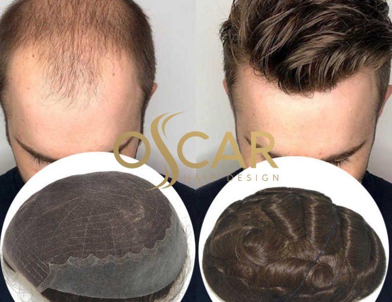 Kişiye Özel Protez Saç Tedavisi Oscar Hair Farkıyla Sizleri Bekliyor